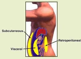 endokoiliako